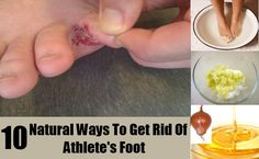 DIY Find Home Remedies - http://www.homeremedyfind.com/10-natural-ways-to-get-rid-of-athletes-foot/