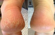 Natural Remedies for Cracked Heels - All For Beauty Beauty Secrets, Diy Beauty, Beauty Skin, Beauty Hacks, Beauty Products, Beauty Guide, Beauty Care, Long Hair Tips, Glossy Hair