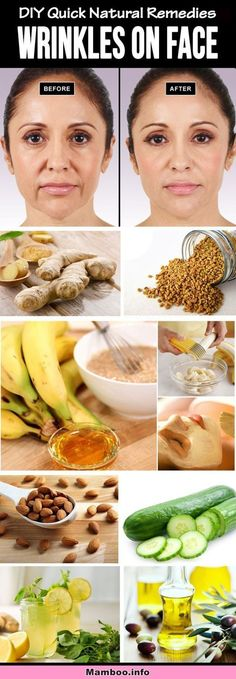 Best Home Remedies to Reduce Wrinkles Naturally - #remedies #beauty #wrinkles #reduce