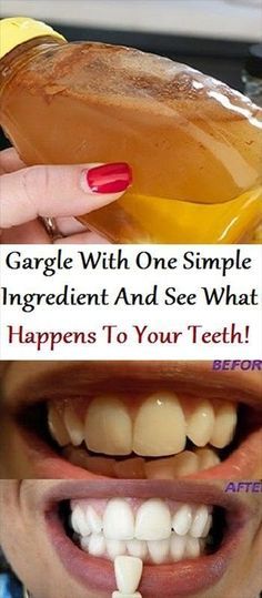 Gargle your mouth with this ingredient and whiten your teeth in natural way