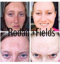Awesome results from the R+F Reverse Regimen! The deep exfoliating wash, intensive brightening solution, Vitamin C and Retinol plus SPF 50+ are all designed in a Multi-Med system that work together to give maximum results! This is consultant Jennifer Grimes. She wanted to get her skin perfect for her wedding day! Here are her one year results with the Reverse Power Pack & Accelerator Pack. Let's chat: 636-248-4463 or ReaganOglesby@gmail.com
