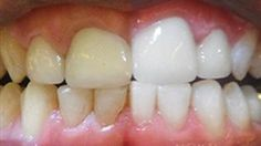 Have you ever missed a day or two of brushing your teeth, and afterwards notice a hard, yellow substance lining your them? This substance appears due to an immense build up of plaque and is known as tartar. As time passes by, the amount of tartar on your teeth will...More