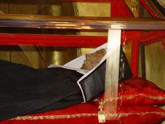 """Santa Rita de Cascia. 1381- 1457. En su caso se dio otro signo extraño en el proceso de descomposición. El metano y sulfuro de hidrógeno resultante de la descomposición de las células parece que se produjo en cantidades muy bajas. Su cuerpo nunca fue enterrado porque desprendía """"buen olor"""", otro rasgo común en estos casos."""