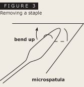 First step in removing a staple using a microspatula