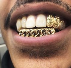 Gold teeth milwaukee