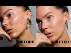 Videos Archives - Linda Hallberg - May 18 2019 at How To Clear Pimples, How To Get Rid Of Pimples, No Make Up Make Up Look, Oil Free Makeup Remover, Clear Skin Fast, Old Makeup, Matte Makeup, Pimples Overnight, Eyeshadow Brushes