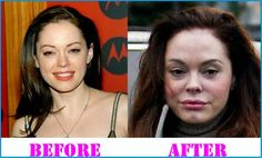Rose McGowan plastic surgery rumors are circulating among the media and public because she has changed her appearance and people think that it would be the result of plastic surgery. Plastic Surgery Before After, Plastic Surgery Gone Wrong, Rose Mcgowan Plastic Surgery, Priscilla Presley Plastic Surgery, Bad Celebrity Plastic Surgery, Worst Celebrities, Surgery Doctor, Plastic Surgery Procedures, Under The Knife