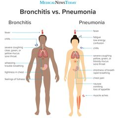 Image Credits: Medical News Today Bronchitis vs Pneumonia Medical Facts, Medical Information, Medical News, Medical Students, Nursing Students, Nursing School Notes, Nursing Schools, Medical School, Nursing Tips