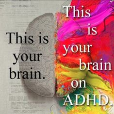 The brain of someone with ADHD is literally different. *** Great collection of up-to-date  information with illustrations to entertain while promoting understanding of what having ADHD is really about. Like a mini-Pinterest page. See our Pins at ADD freeSources:  http://www.pinterest.com/addfreesources//