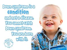 Down syndrome quote, fact poster, down syndrome baby
