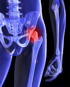 csípőízület osteoarthritis kezelésére