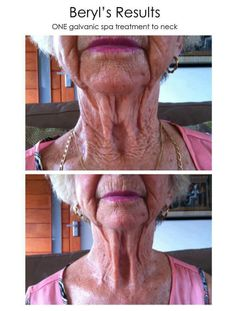 Think you have TOO manly wrinkles and that nothing will work?    Check this out.. this results after one treatment using the wrinkle iron - The Galvanic Spa and ageLOC!