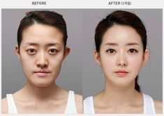 The highest rate of plastic surgery in the world is found in South Korea. Here is a look at some of the changes people have made.