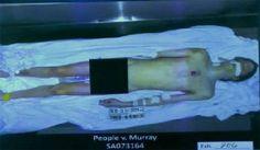 Michael Jackson autopsy photo - Warning: Graphic