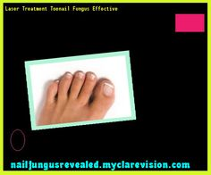 Laser treatment toenail fungus effective - Nail Fungus Remedy. You have nothing to lose! Visit Site Now