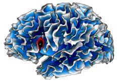 """Une information très intéressante sur une découverte française en matière de #TSA : """"#Autisme : un """"faux pli"""" dans le #cerveau ?"""" !  Des chercheurs du #CNRS, de l'université d'Aix-Marseille & de l'Institut de neurosciences de la Timone, dont le Pr David #DaFonseca, ont mis en évidence une #AnomalieCérébrale chez les enfants avec autisme. Cette particularité, qui pourrait être un #biomarqueur cérébral spécifique de l'autisme, se détecterait à l'IRM dès l'âge de 2 ans."""
