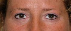 Immediately after permanent eyeliner, upper and lower lids.