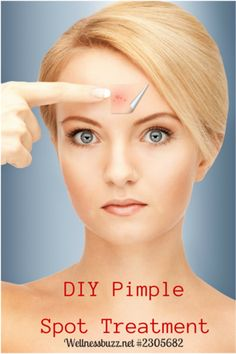 DIY Pimple Spot Treatment recipe using Young Living Purification Essential Oil