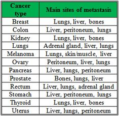 Image result for common sites of metastasis