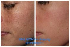 Sun damage? Now you see it and now you don't. One month using Rodan and Fields' Reverse regimen. Amazing!
