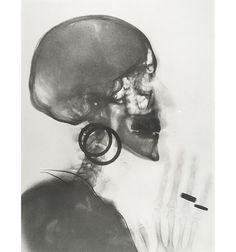 Meret Oppenheim X-Ray. Self-Portrait 1964 Vintage gelatin silver print 15 5/8 x 11 3/4 inches (40 x 30 cm)