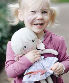 Mom Creates A Custom Doll For Her Daughter With Identical Facial Birthmark