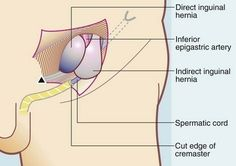 Direct Inguinal hernia Medial to Inferior Epigastric artery & Indirect Inguinal hernia Lateral to Inferior Epigastric artery . Map, Google, Reading, Location Map, Peta, Maps