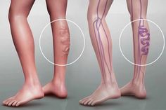 There is not a woman on Earth that doesn't hate varicose veins because they make the legs very unattractive. They are also painful and uncomfortable. We know a natural way to get rid of varicose veins Varicose Vein Removal, Varicose Vein Remedy, Varicose Veins Treatment, Natural Acne Remedies, Natural Cures, Natural Solutions, Health Remedies, Cellulite, Health Tips