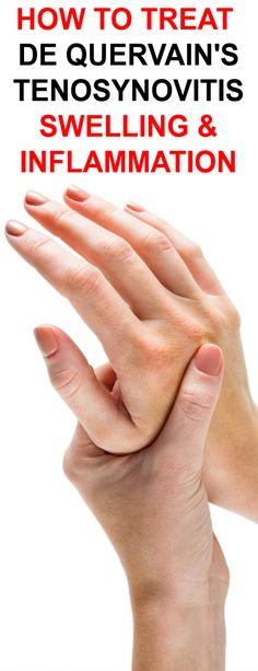How To Treat De Quervain's Tenosynovitis Pain & Tenderness with Proven Natural Herbal Remedies Prevent Arthritis, Knee Arthritis, Arthritis Remedies, Psoriatic Arthritis, Herbal Remedies, Ganglion Cyst Wrist, Reduce Bruising, Costochondritis