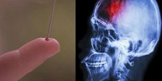 How to Save a Person from Stroke Using Only a Needle? Le Mal A Dit, Acv, Salvia, Natural Cures, The Cure, Continue Reading, Anatomy, Mental Health, Articles