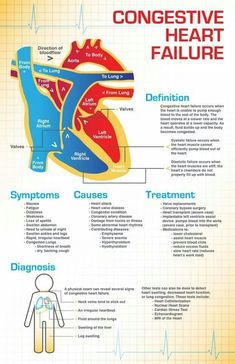 Learn all about Congestive heart failure, its causes, Symptoms and Treatment. Congestive heart failure is a disease characterized by the heart& inability to effectively pump blood throughout the body. Nclex, Nursing Information, Cardiac Nursing, Pharmacology Nursing, Nursing School Notes, Nursing Schools, Medical Coding, Nursing Tips, Nursing Cheat Sheet