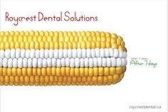 Roycrest Dental Center is a multi speciality chain of #DentalClinic located in Brampton.
