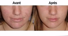 Weird Trick Forces Your Body to Eliminate Acne - Free Presentation Reveals 1 Unusual Tip to Eliminate Your Acne Forever and Gain Beautiful Clear Skin In Days - Guaranteed! Cystic Acne Treatment, Natural Acne Treatment, Natural Acne Remedies, Skin Care Remedies, Skin Treatments, Homemade Acne Treatment, Acne Control, Coconut Oil For Acne, Acne Scar Removal