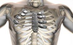 http://www.futura-sciences.com/magazines/sante/infos/actu/d/medecine-cotes-sternum-imprimes-3d-implantes-patient-59760/