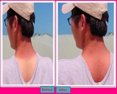 How to Get Rid Of a Tan Line