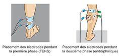 Placement des électrodes Compex pour une tendinopathie du talon d'achile