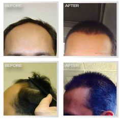 35 Best Miami Hair Transplant Surgery Images On Pinterest Hair