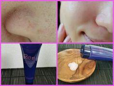 【医学博士監修の自宅ケア】鼻の黒ずみや頬の毛穴が1ヶ月で毛穴レスになれました!主婦目線でご紹介します! | News Monster