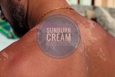 If you have sunburns on your face, it shows that the UVB sunray has taken its toll on your skin. It clearly shows that you've been exposing yourself to too much sunlight, which is not good for your body. However, if you have a sunburn, this DIY sunburn cream will soothe the inflammation resulting