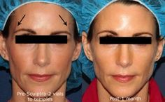 Sculptra gives natural looking volume replenishment to combat signs of aging throughout the face, including the temples and cheeks. Botox Fillers, Dermal Fillers, Botox Cosmetic, Aesthetic Dermatology, Temples, Anti Aging, Hair Accessories, Skin Care, Cosmetics