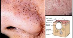 Simple And Natural Remedy To Remove Blackheads Of Your Skin! #RemoveBlackheadsDIY