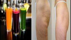 3 Recettes uniques de 3 boissons BIO pour en finir avec la cellulite…Ça marche à tout les coups !