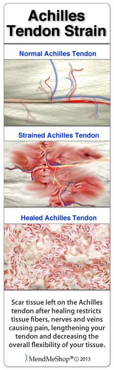 Even with a minor achilles tendon strain scar tissue will build to a