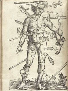medical illustration - im pretty sure this was all about possible wounds experienced in battle. owies.