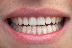 Um bom remédio caseiro para remover o tártaro dos dentes é escovar cuidadosamente os dentes com uma solução de limão com bicarbonato de sódio, pois...