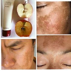 Vitamin C Face Wash Diminishes age spots and discolouration. 10% Vitamin C. Smells amazing, rich, creamy formula. Message me to order 📲 #nuskin #facewash #180facewash #vitaminc #agespots #discolouration Ap 24 Whitening Toothpaste, Aha Peel, Vitamin C Face Wash, Galvanic Body Spa, Nu Skin, Healthy Skin Care, Loving Your Body, Madagascar, Beauty