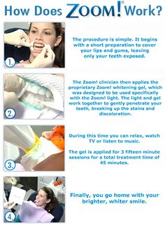 Lein DDS is a Jupiter, FL based dentist. Lein and staff are available for all of your and your family's dental healthcare needs. Zoom Teeth Whitening, Teeth Whitening Procedure, Teeth Whitening Remedies, Natural Teeth Whitening, Piercing, Dental Assistant, Dental Hygiene, Dental Teeth, Best Dentist