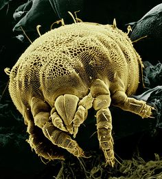 Some Spectacular SEM Images Of The Microscopic World | IFLScience. This is a mite.