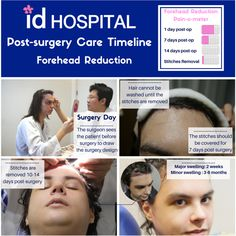 Forehead Reduction Surgery, Korean Plastic Surgery, High Forehead, Tweezing Eyebrows, Male Pattern Baldness, Surgery Recovery, Relaxer, Skin Elasticity, Face