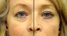 An Oil Super Serum from Only 2 Ingredients: The Best Homemade Remedy Against Wrinkles Around the Eyes – Recipe!